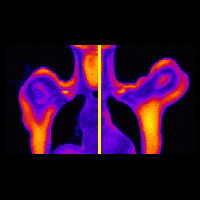 Combined physiological and biochemical measurements in a PET/MR anatomical image.